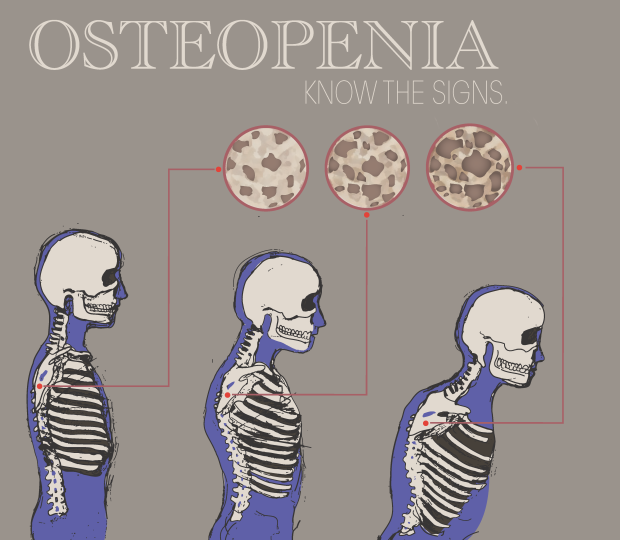 Osteopenia_png